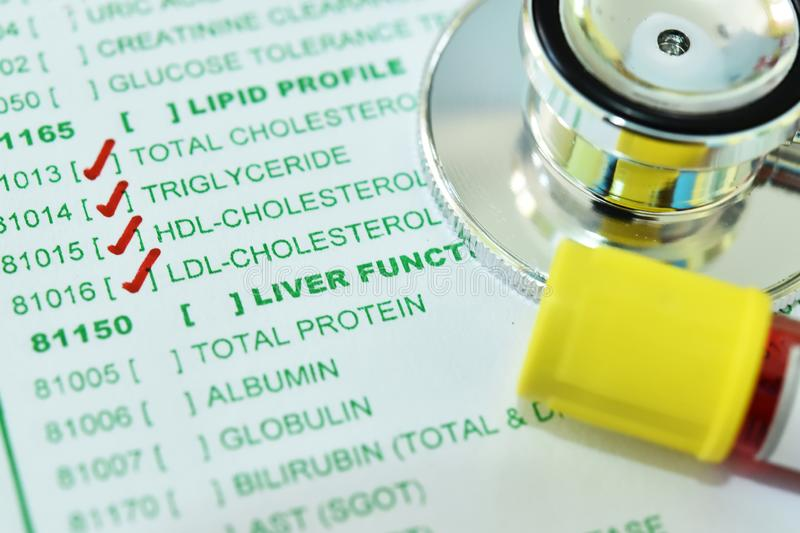 Blood sample tube for lipid profile test stock images