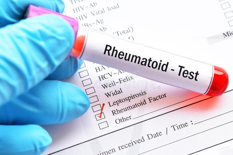Blood sample tube for rheumatoid factor test. Blood sample with laboratory requisition form for rheumatoid factor test royalty free stock photography