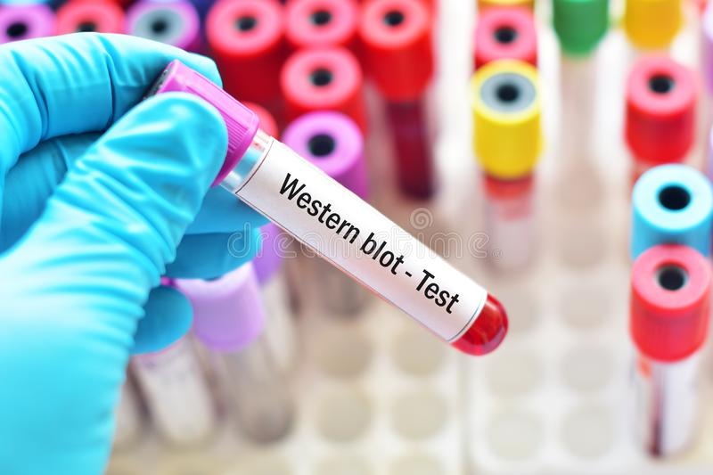 Blood sample tube for Western blot test. Confirmatory test for HIV infection stock photo