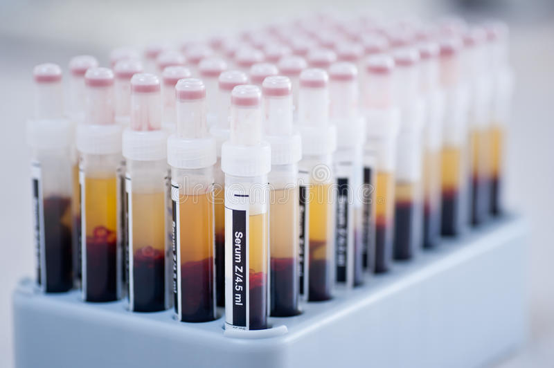 Blood samples royalty free stock photo
