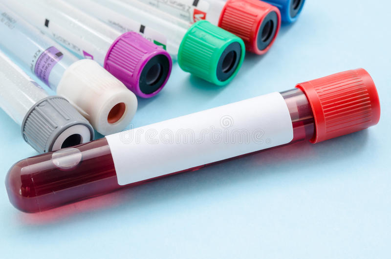 Blood samples tube for screening test. royalty free stock image