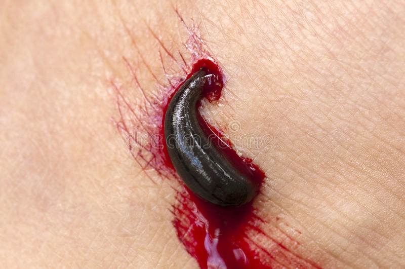 Download Blood sucking leech stock image. Image of body, forest - 12409953
