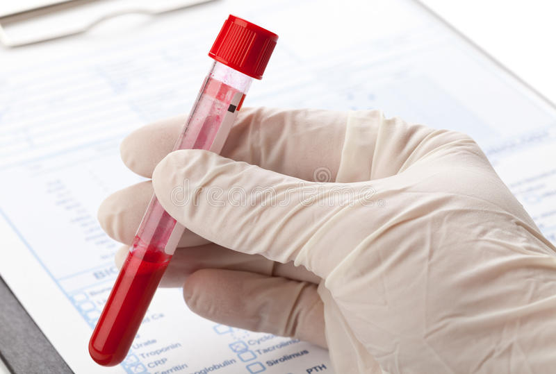 Blood test royalty free stock photo