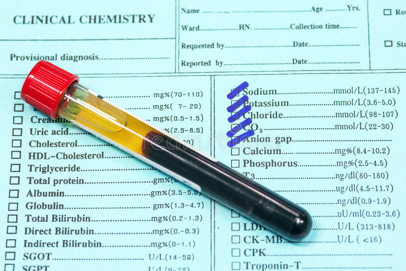 Blood in test tubes and investigation form in laboratory. stock image