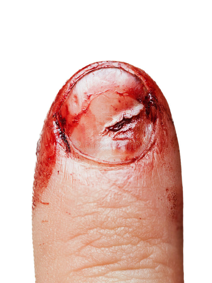 Blood wound finger nail. Physical injury blood wound human finger nail stock images
