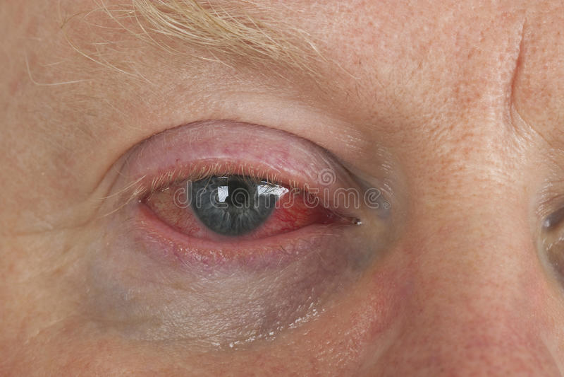 Bloodshot eye royalty free stock image
