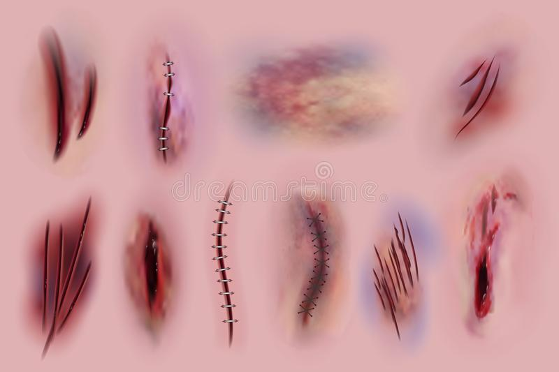 Bloody wounds. Scars, surgical stitches and bruis, skin cuts. Bloody wound textures vector isolated set stock illustration