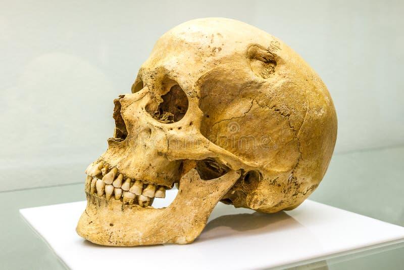 Blootgestelde menselijke schedel stock afbeeldingen