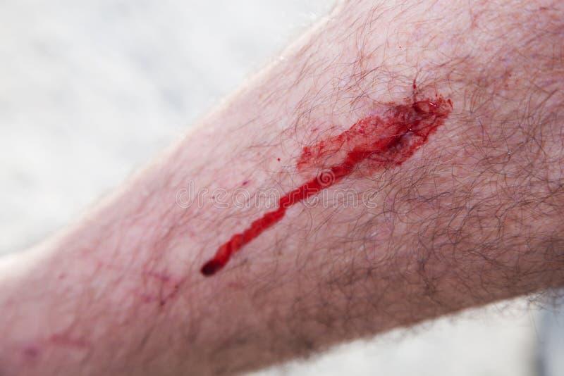 Blut auf einem männlichen Fahrwerkbein. Verletzung lizenzfreie stockfotos