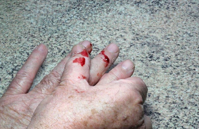 Blut von einem Schnittfinger. stockfoto