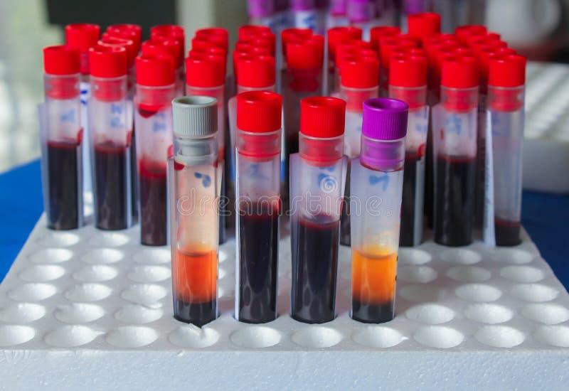 Blutexemplare für Labor stockfoto