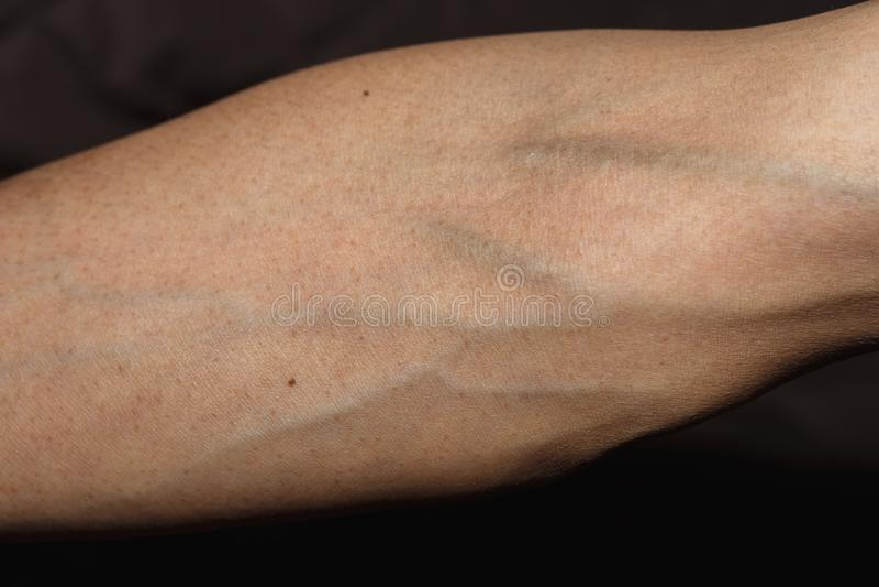 Blutgef??, d?nner Arm, Arm mit Blutadern auf wei?em Hintergrund mit Beschneidungspfad lizenzfreies stockbild