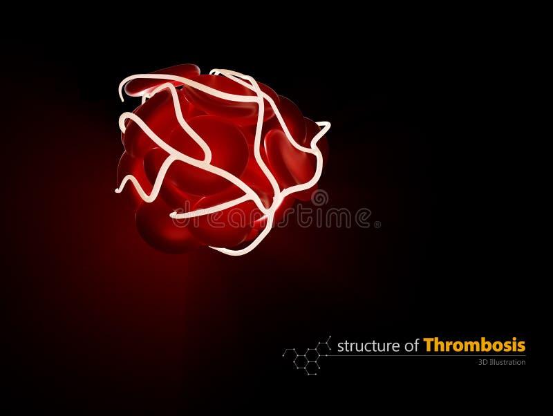 Blutgerinnsel und Thrombose, medizinisches Konzept der Illustration 3d eine Gesundheitsstörung vektor abbildung