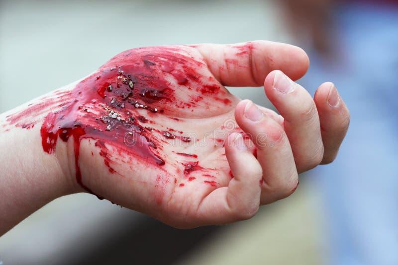 Blutige Hand lizenzfreie stockfotos