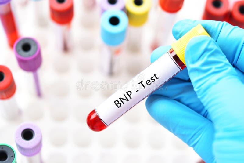 Blutprobe für BNP-Test stockbild