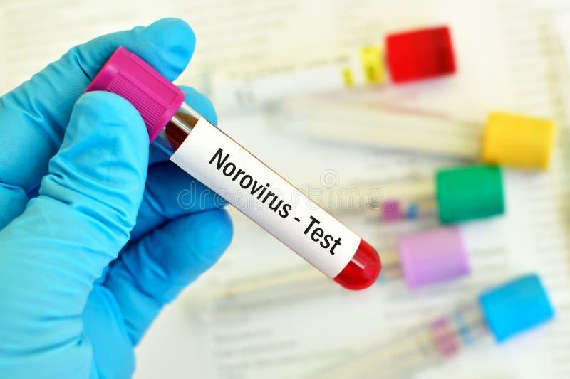 Blutprobe für Norovirus-Test stockfotografie