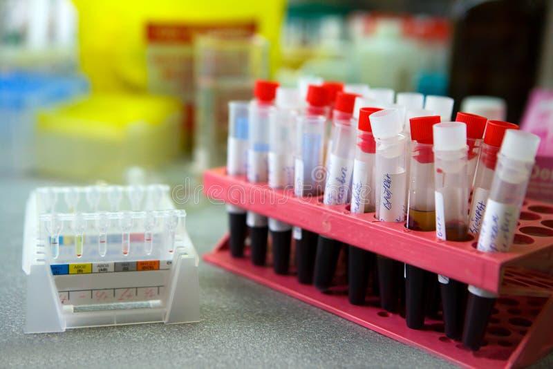 Blutrohre im Labor Tests, Blutspende stockbilder