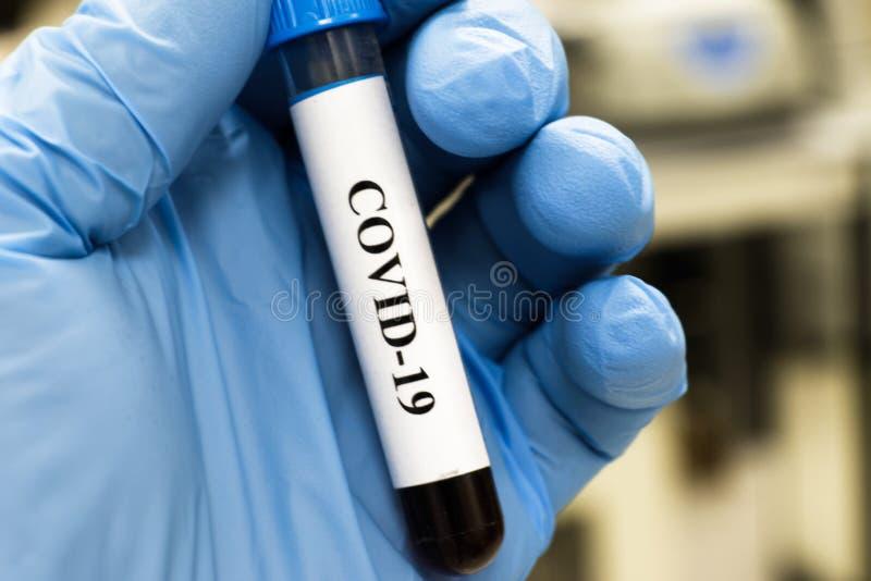 Bluttest für COVID-19 lizenzfreie stockfotos