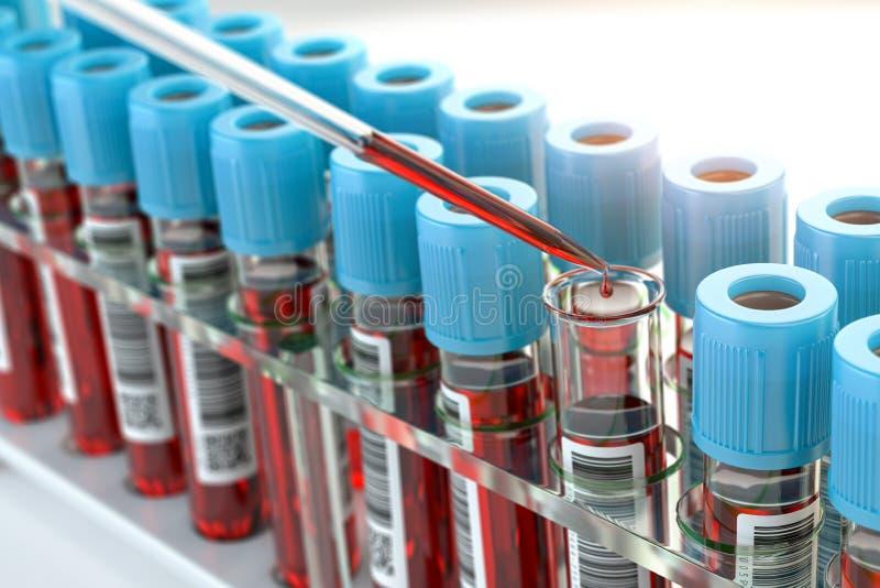 Bluttestproben und Bluttestpipette, die Flüssigkeit zu einem der Röhrchen in einem medizinischen Labor hinzufügt stockbild