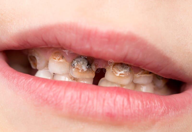 Boca aberta do paciente humano que mostra a deterioração de dentes da cárie imagem de stock royalty free