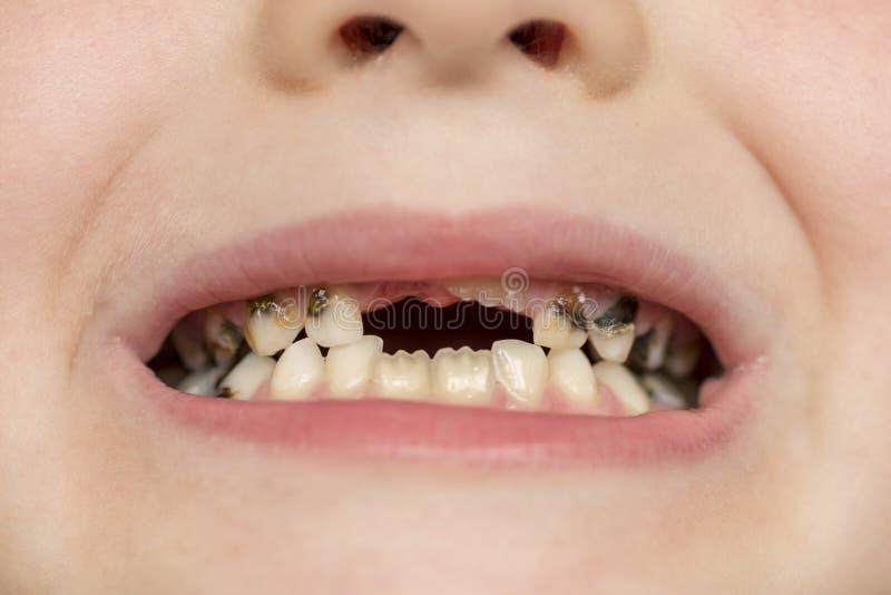 Boca aberta paciente da crian?a que mostra a deteriora??o de dentes das cavidades Feche acima dos dentes de beb? insalubres Medic fotografia de stock royalty free