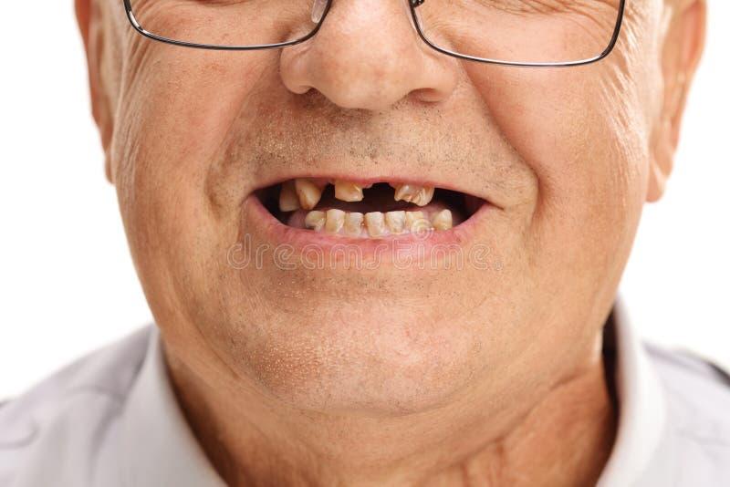 Boca de un mayor con los dientes quebrados imagenes de archivo