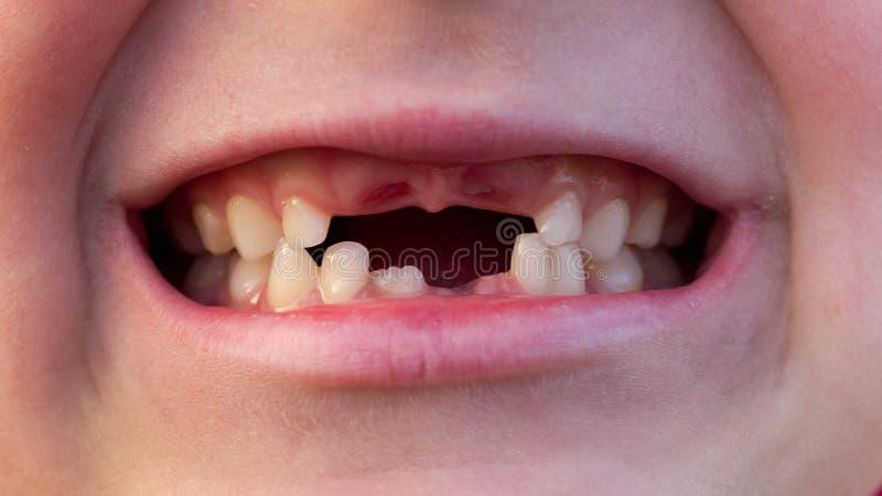 Boca del niño con los dientes cambiantes imagen de archivo