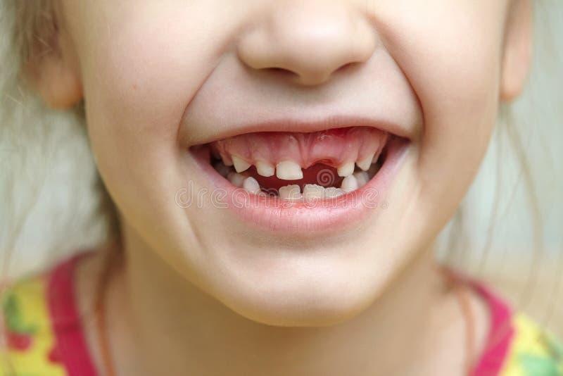 Boca infantil con los dientes de leche que falta imagen de archivo
