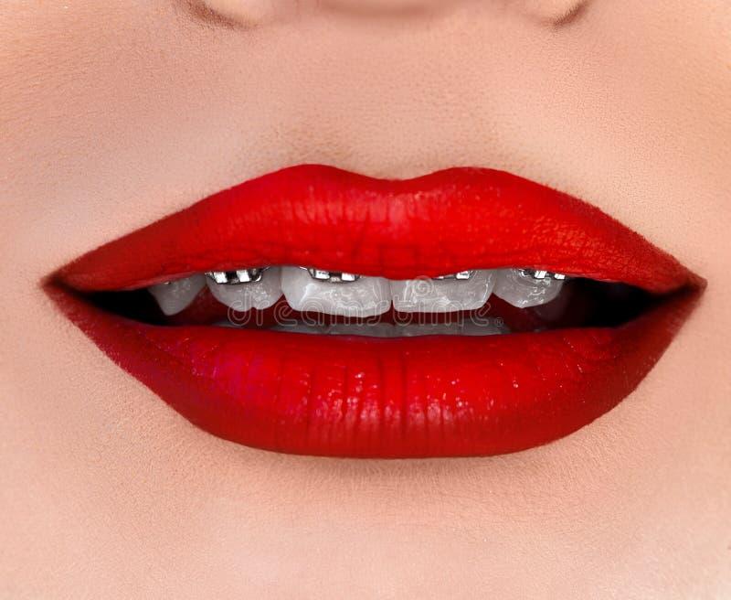 Bocca della donna con i sostegni sui denti immagini stock libere da diritti