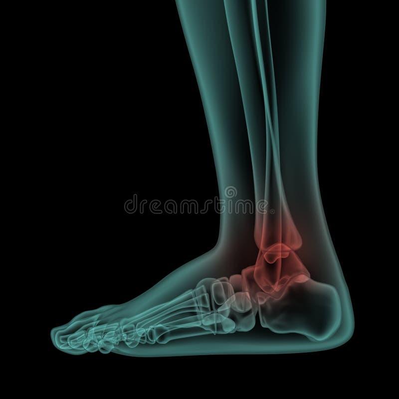 Boczny promieniowanie rentgenowskie widok ludzka bolesna stopa i kostka royalty ilustracja