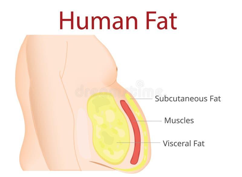 Body Fat, Liposuction, diet , surgery, exercise - Vector Illustration. Image for use vector illustration