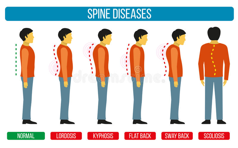 Body posture defect. Vector infographics of spine diseases. Scoliosis and lordosis medical diagrams. Spine backbone, spine diagnosis, diagnostic spine symptom royalty free illustration