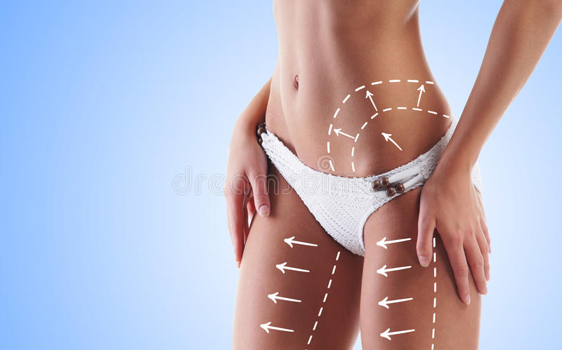 Body of young and beautiful woman. Female body with the drawing arrows on it. Fat lose, liposuction and cellulite removal concept royalty free stock photo