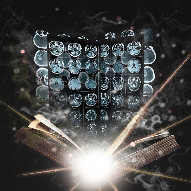 Boek en MRI-film die door geheimzinnige nevel als concept wordt omringd van stock afbeeldingen