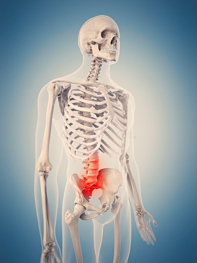 Bolesny dolędźwiowy kręgosłup ilustracji