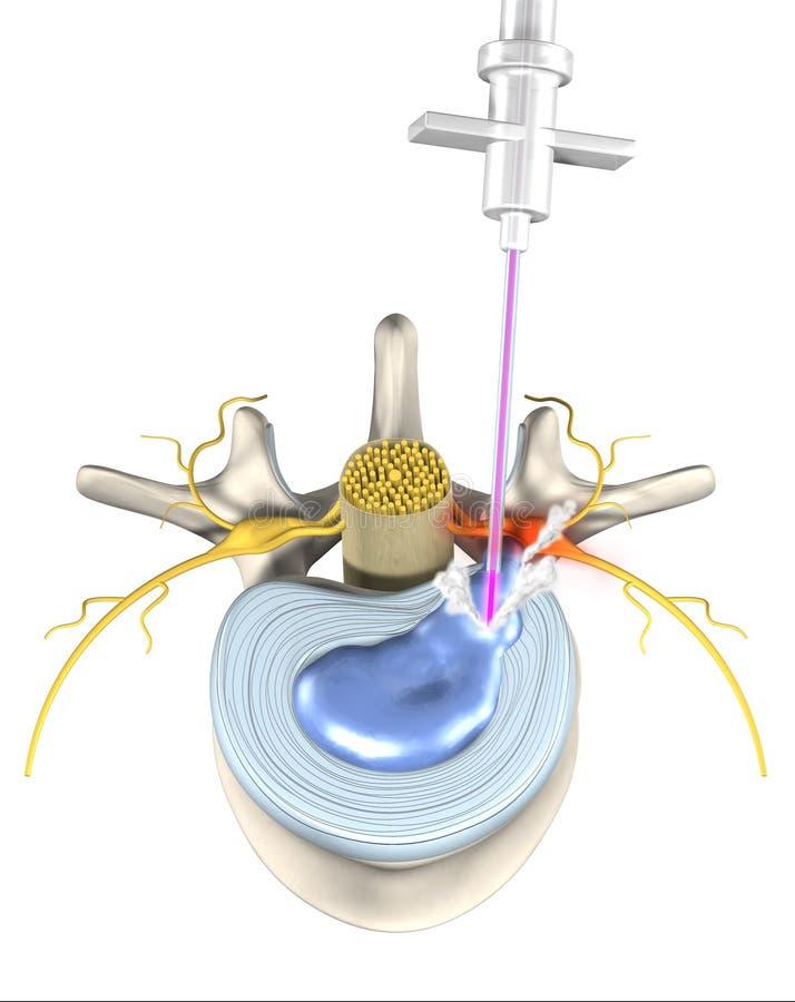 Bolesny, lekko inwazyjny dysk, medyczna ilustracja 3D na białym tle royalty ilustracja