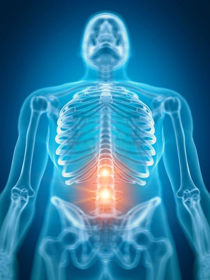 Bolesny niski kręgosłup ilustracji