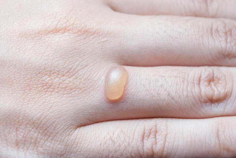 Bolha grande no dedo humano foto de stock