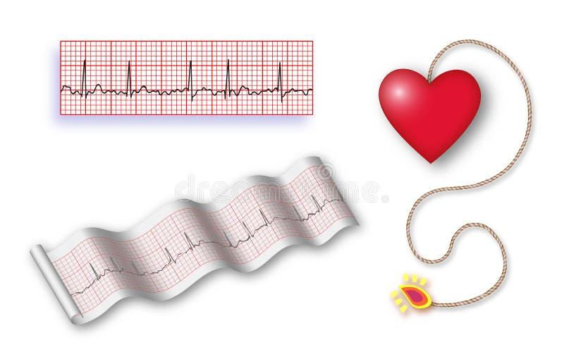 Bombe à retardement cardiaque avec le cordon de det + 2 bandes d'EKG illustration stock