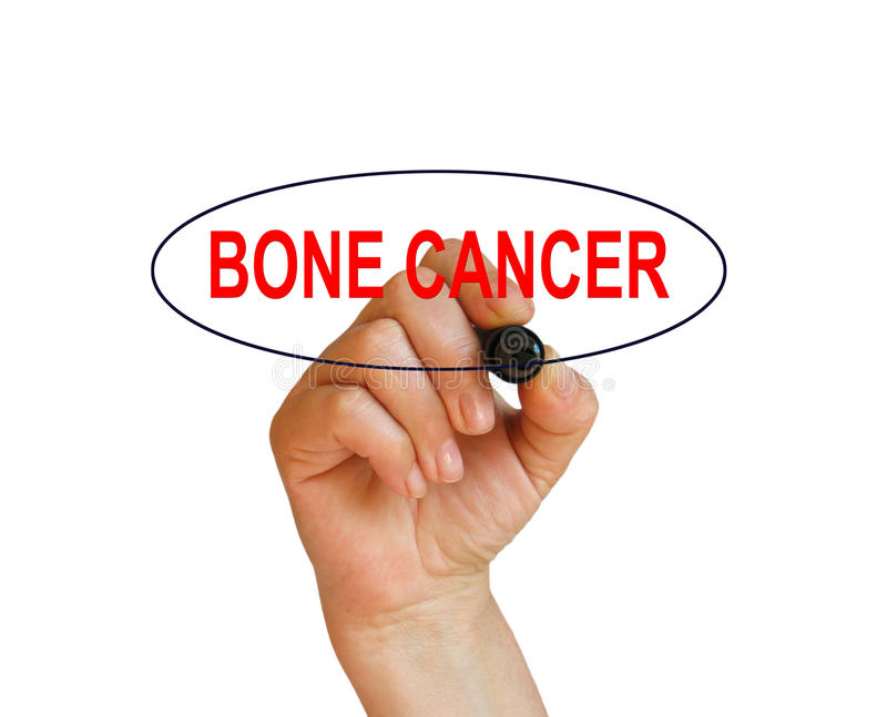 BONE CANCER. Writing word BONE CANCER with marker on white background made in 2d software vector illustration