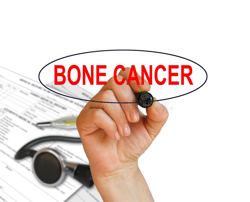 BONE CANCER. Writing word BONE CANCER with marker on white background made in 2d software stock illustration