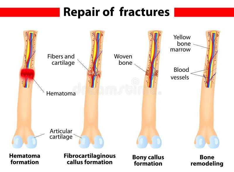 Download Bone Fracture Healing Process Royalty Free Stock Photos - Image: 27480478