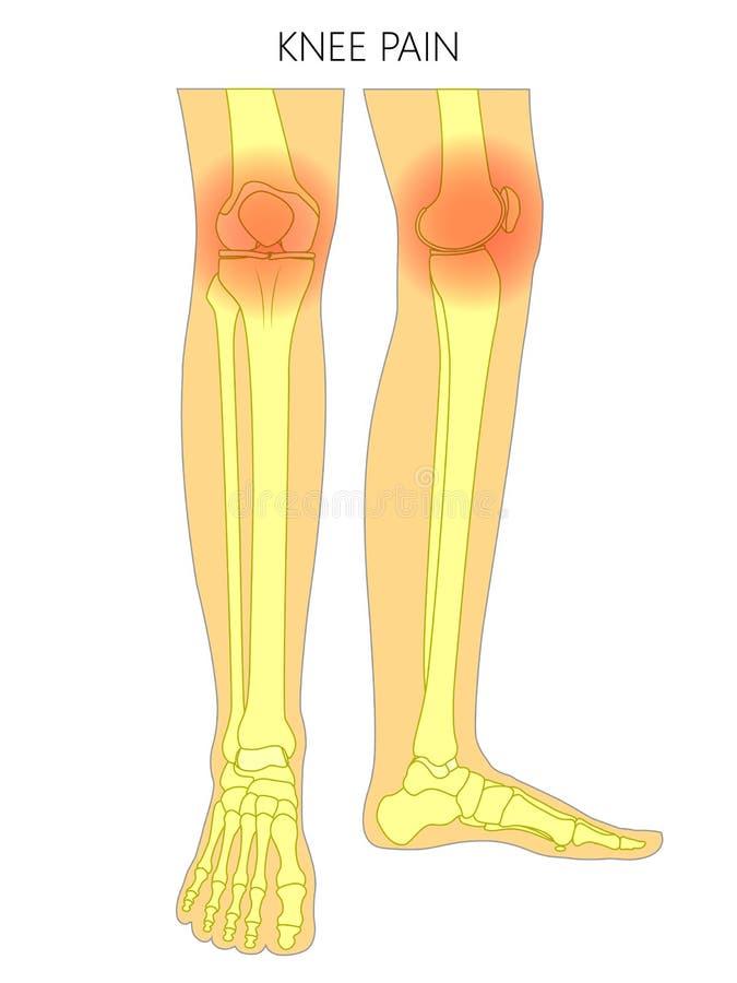 Bone Fracture_Knee Pain Bones Of The Leg Stock Vector - Illustration ...
