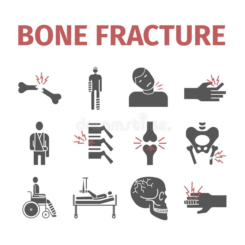 Bone Fractures icons. Treatment. Infographic. Vector illustrations royalty free illustration