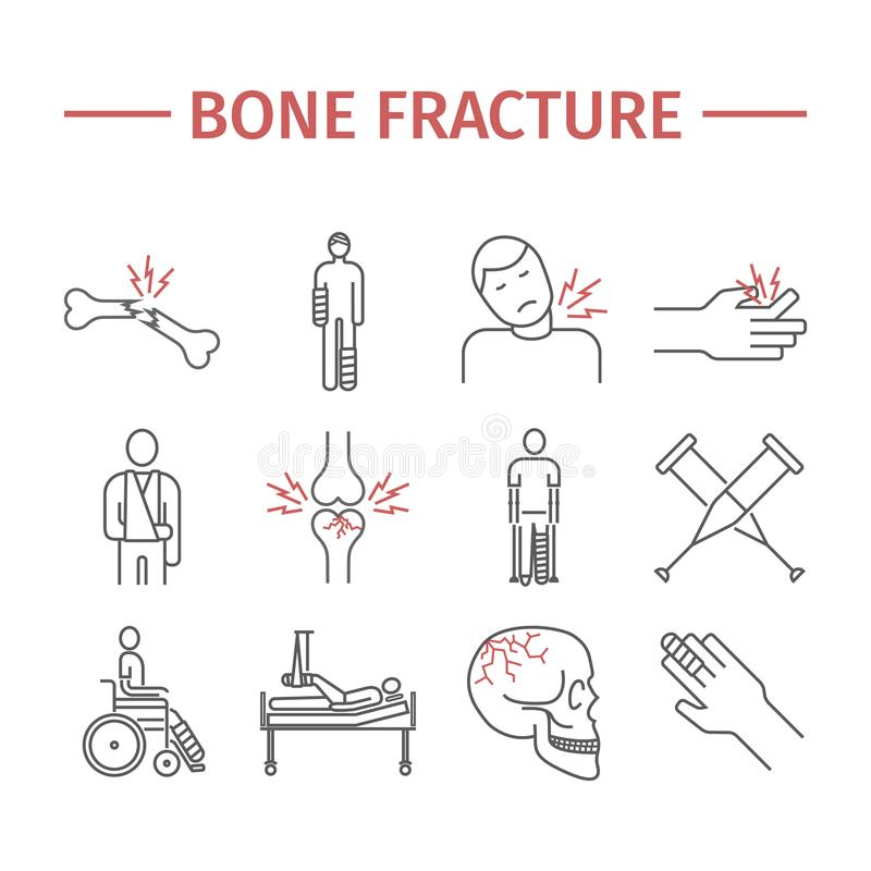 Bone Fractures line icons. Treatment. Infographic. Vector illustrations stock illustration