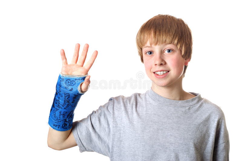 Bone healed, ready for the cast to be taken off royalty free stock photo