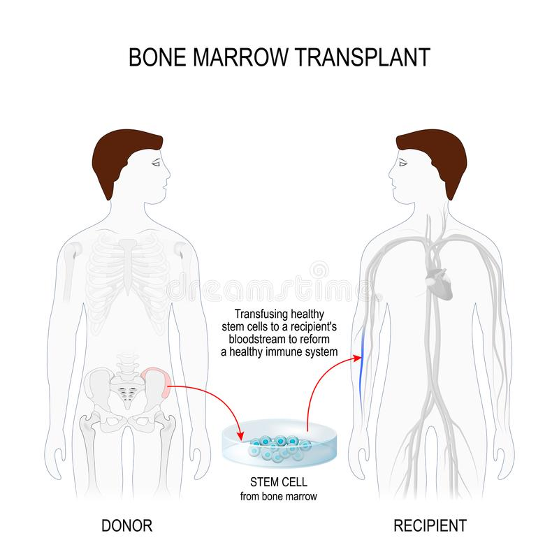 Bone marrow transplantation. Bone marrow transplant. men silhouettes recipient and donor with highlighted of the skeleton and blood vessel. Vector illustration vector illustration