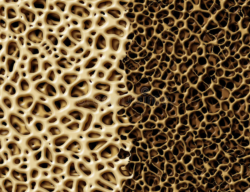 Bone With Osteoperosis. Medical anatomy concept as a strong healthy and normal spongy tissue against unhealthy porous weak skeleton structure due to aging or royalty free illustration
