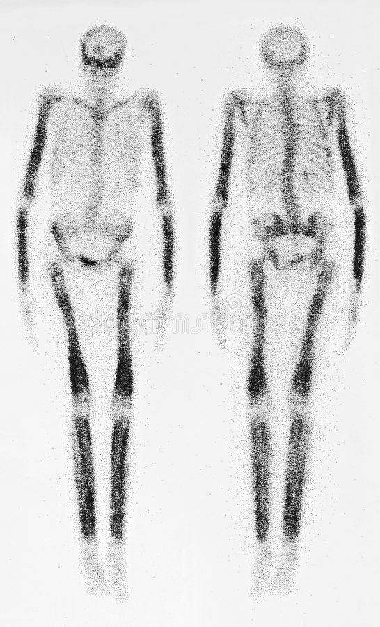 Free Bone Scan Stock Photos - 5487193