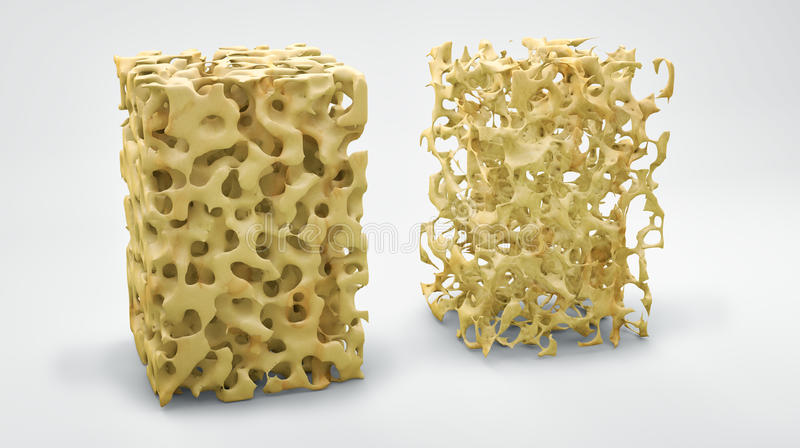 Bone structure, normal and with osteoporosis. Bone structure 3d illustration, normal and with osteoporosis vector illustration